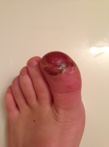 Days later, all this peeled off and my toe looks pretty normal now. Isn't it so gross?!